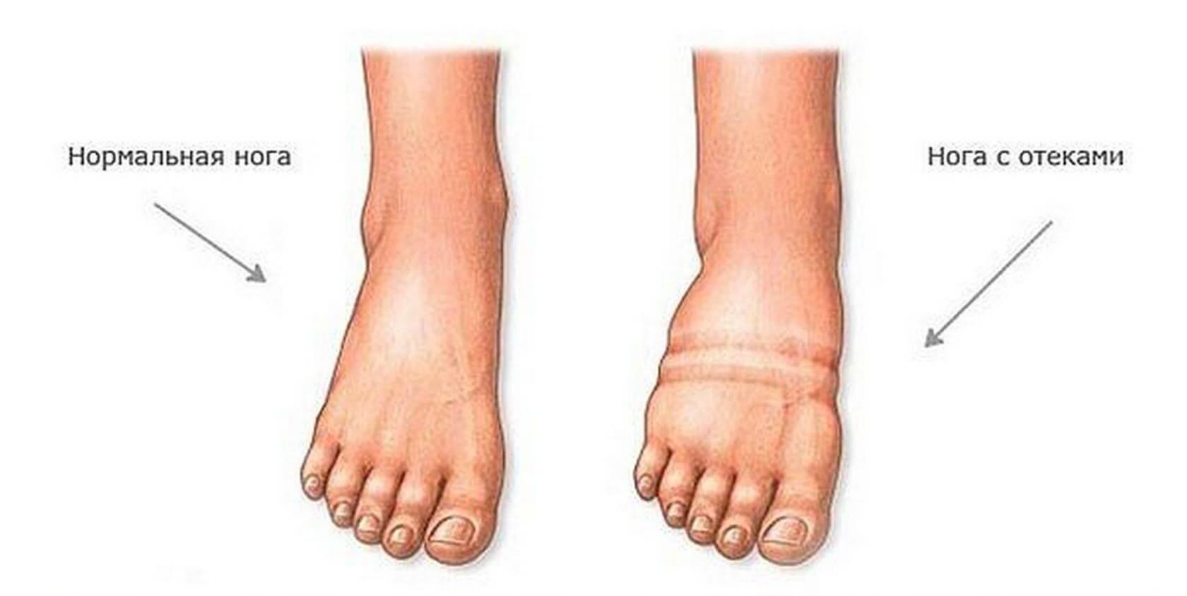 Боремся с усталостью и отеком ног