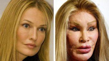Последствия после пластики и косметики